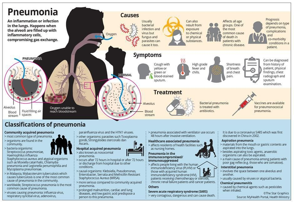 How Dangerous Is Pneumonia Nation The Star Online